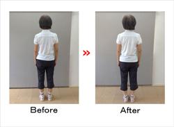 250姿勢改善1