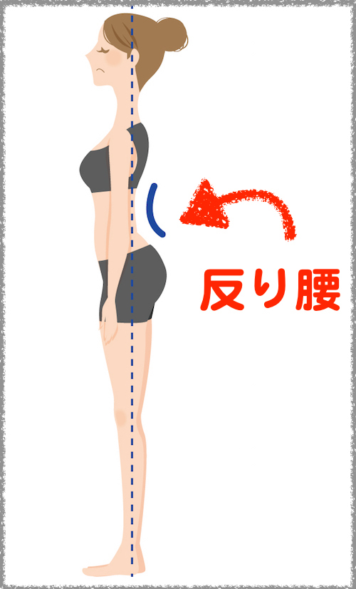 姿勢 腰椎前弯タイプ