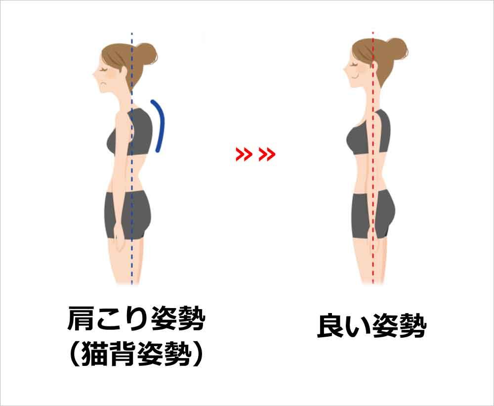 姿勢改善の例 猫背
