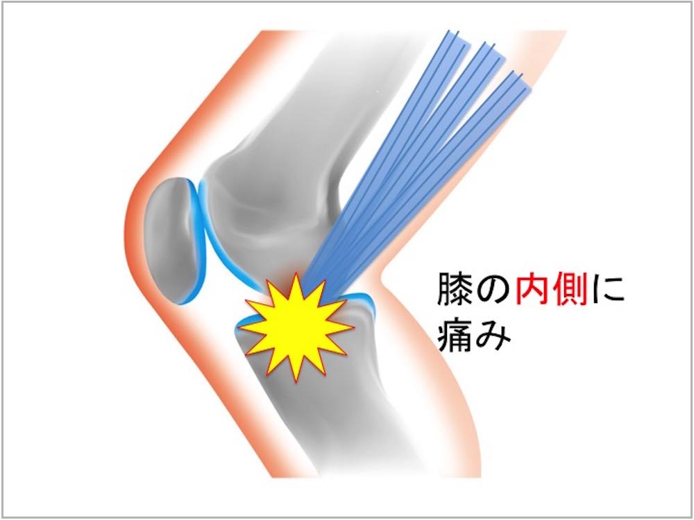 鵞足炎 ランニング障害 膝痛 イラスト