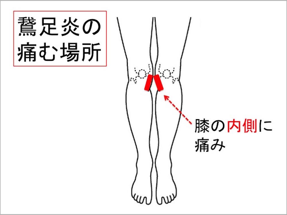 鵞足炎の痛み場所、膝痛、ランニング障害